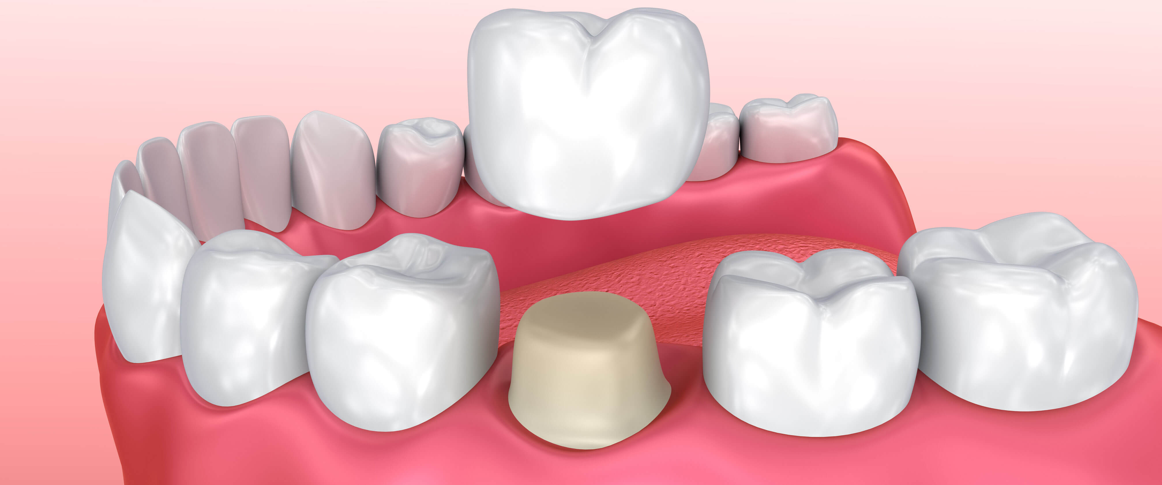 dental crowns turkey