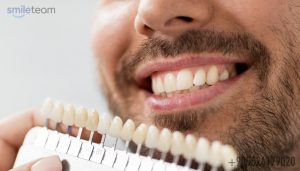 Veneers In Turkey