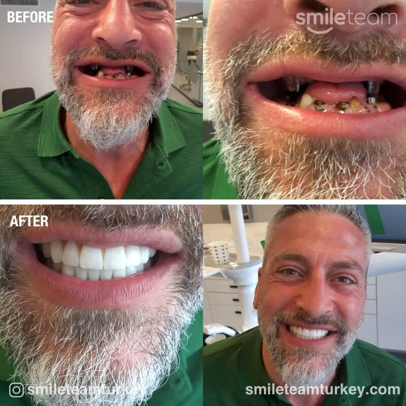 dental patient reviews before after