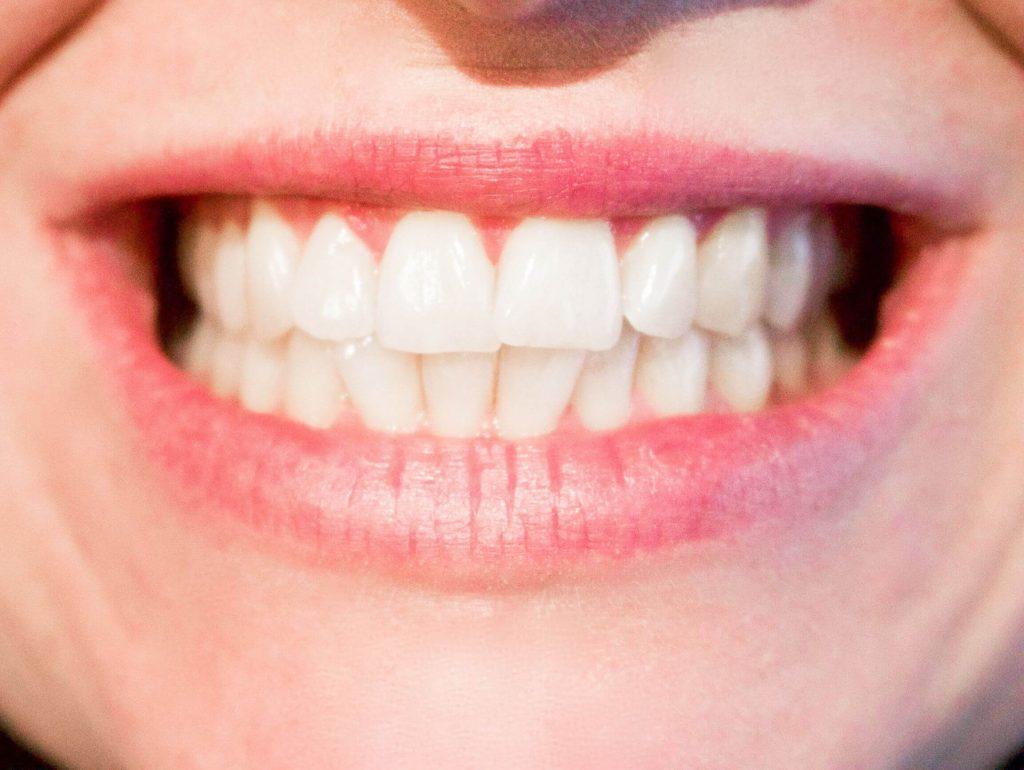 All on Six Dental Implants in Turkey