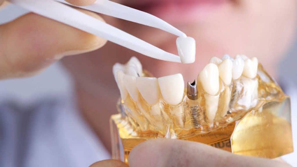 Immediate Dental Implant in Turkey