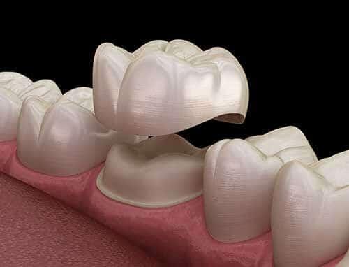 Dental Crown 2