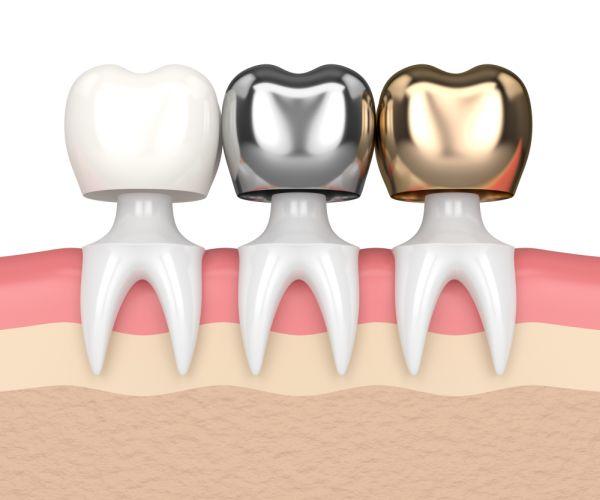 Dental crown materials