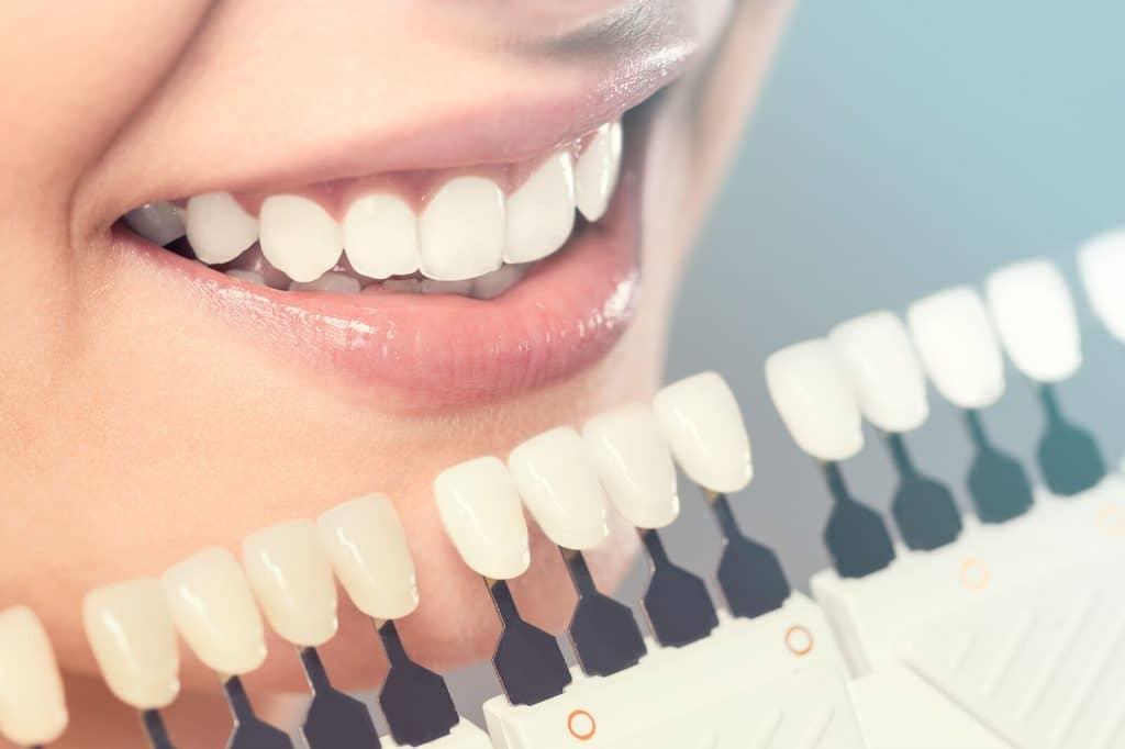 Dental Veneers: Guide, Procedure and Cost