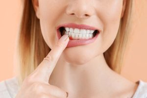 Gum disease and Other Gum Problems