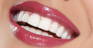 """Hollywood Smile Celebrities: Top Celebrities who received a """"Hollywood smile"""""""