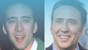 """Top Celebrities of who received a """"Hollywood smile"""""""