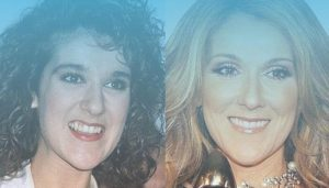 """Hollywood Smile of Celebrities: Top Celebrities who received a """"Hollywood smile"""""""